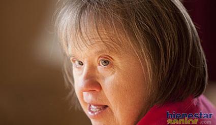 Demencia Asociada Al Sindrome De Down